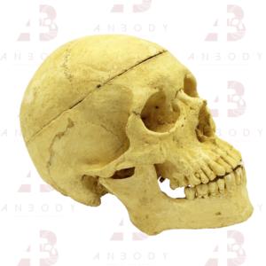 Cráneo – ALQUILER