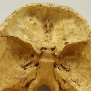 01 cráneo con defecto