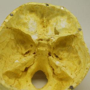 20 Cráneo