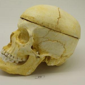 23 Cráneo