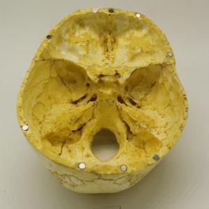 21 Cráneo