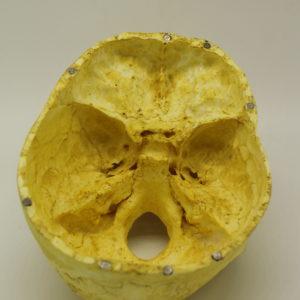 24 Cráneo