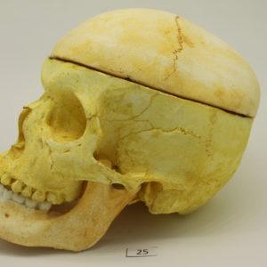 25 Cráneo