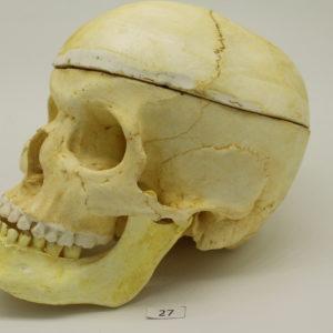 27 Cráneo
