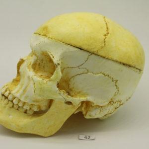 42 Cráneo